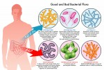 IBD effects and treatments
